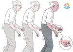 Паркинсона болезнь симптомы лечение – Болезнь Паркинсона — симптомы болезни, профилактика и лечение Болезни Паркинсона, причины заболевания и его диагностика на EUROLAB