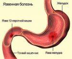 Язва двенадцатиперстной кишки как лечить – Как лечить язву двенадцатиперстной кишки