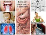 Запах изо рта желудок причины – Неприятный запах изо рта от желудка: лечение, причины